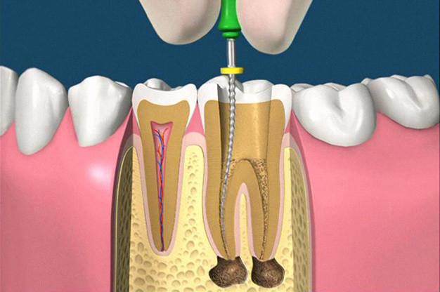 cura canalare per il trattamento endodontico