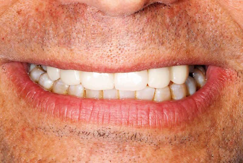 faccette dentali uomo dopo