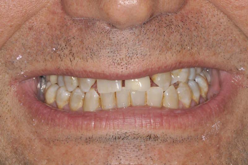 faccette dentali uomo prima