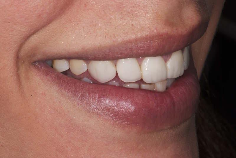 faccette dentali risultato finale