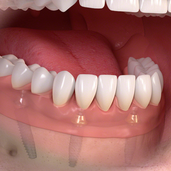 protesi all on four su 4 impianti dentali