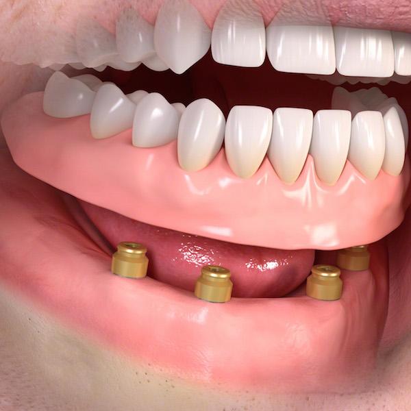 fissare la protesi agli impianti dentali
