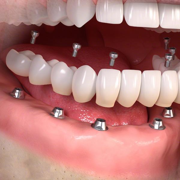 rimettere tutti i denti con gli impianti full arch
