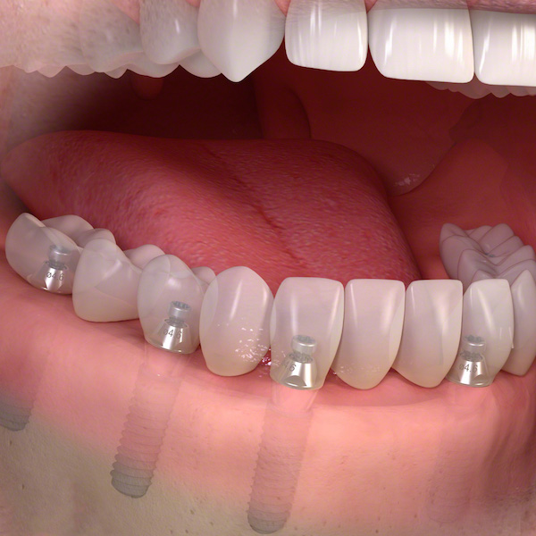 impianti dentali con protesi full arch