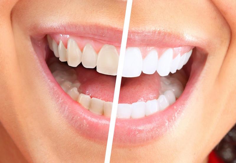 sbiancamento dentale prima e dopo
