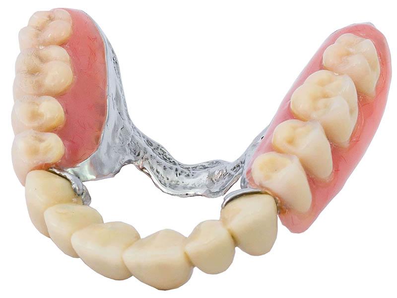 protesi dentali semi fisse