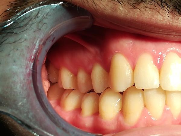 profilo apparecchio denti adulti dopo