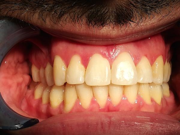 apparecchio denti adulti dopo