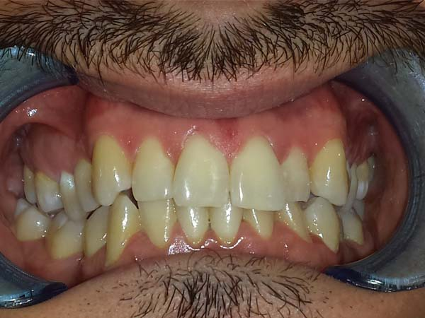 apparecchio denti adulti prima