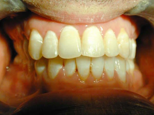 apparecchio denti adulti prima e dopo