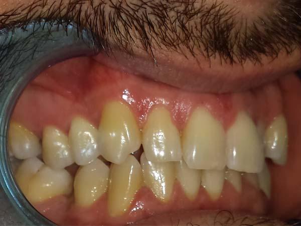profilo apparecchio denti adulti prima