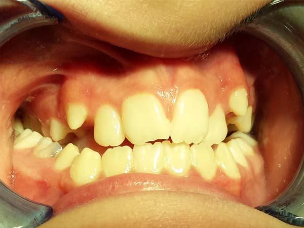 ortodonzia fissa bambini prima e dopo