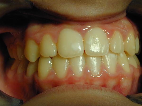 ortodonzia fissa bambini dopo