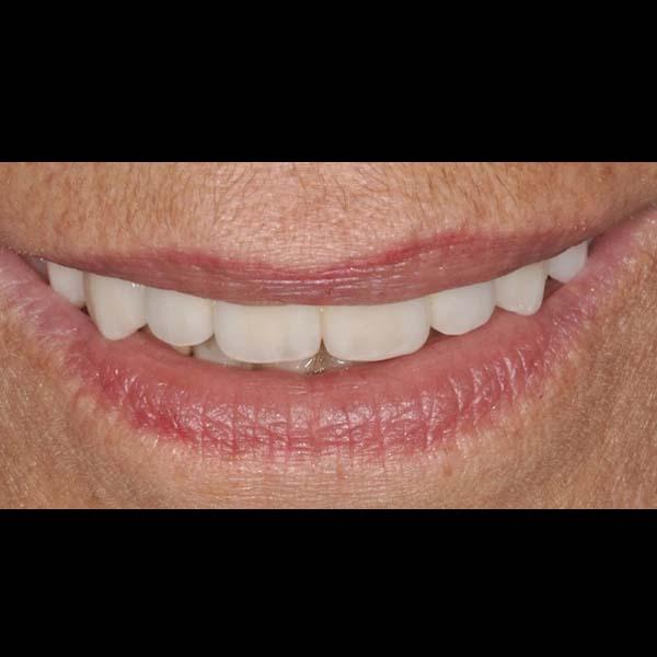 rimettere tutti i denti con gli impianti dentali full arch
