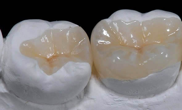 intarsi dentali in composito