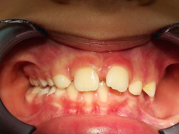 ortodonzia intercettiva bambini dopo