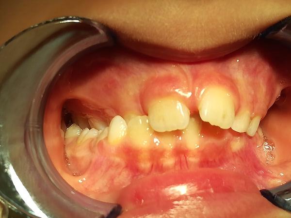 ortodonzia intercettiva bambini prima
