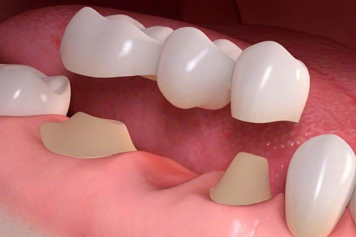 ponti e corone dentali