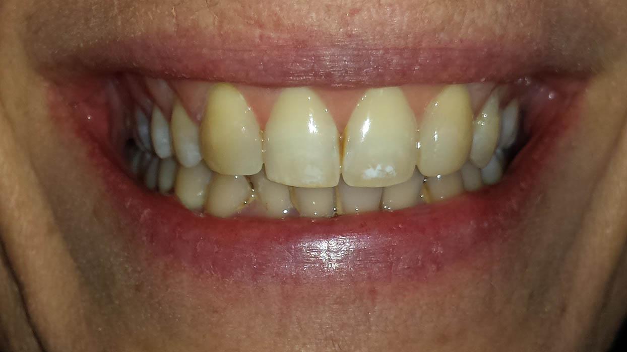ricostruzione dente canino dopo