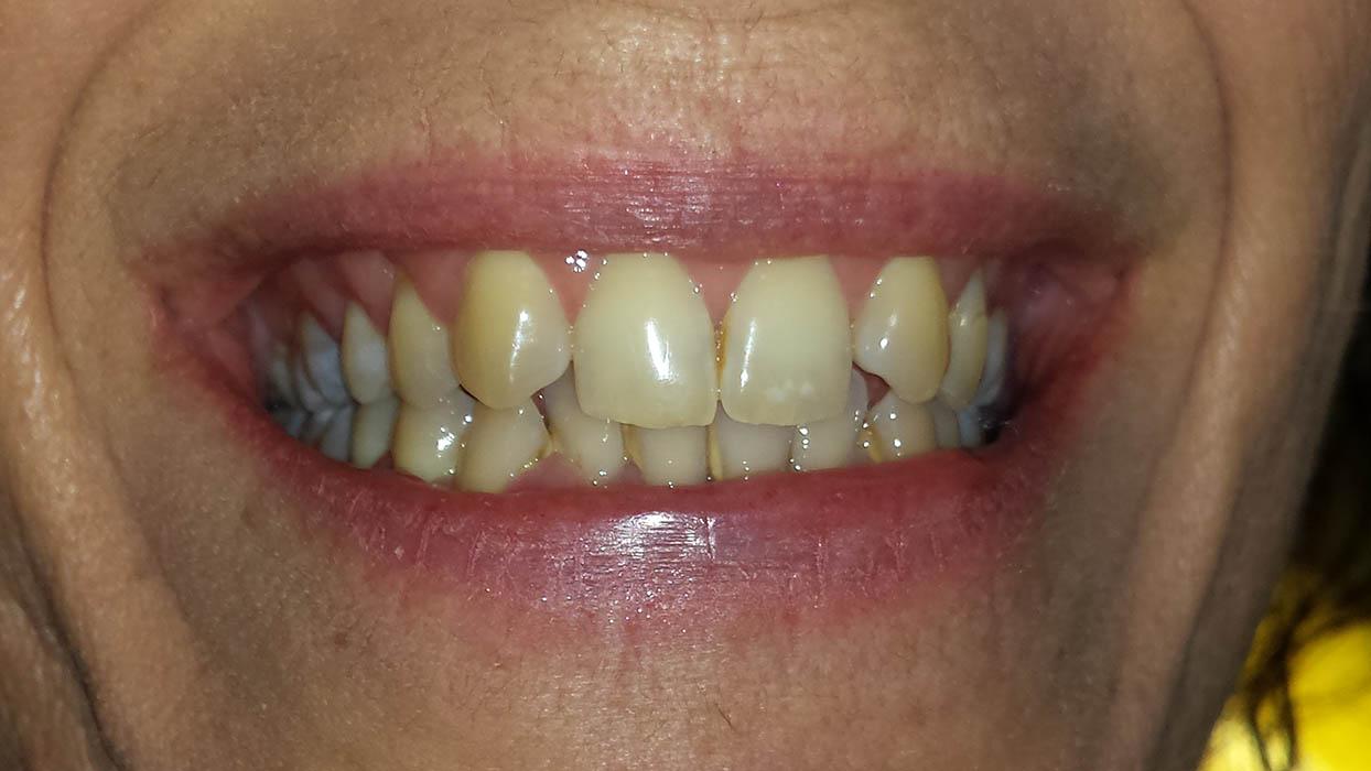 ricostruzione dente canino prima