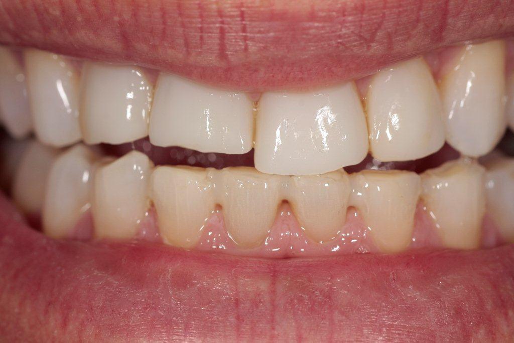 ricostruzione dente incisivo in composito